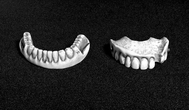 Carved_ivory_upper_and_lower_denture_Wellcome_L0003910
