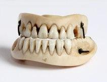 waterloo_teeth.jpg